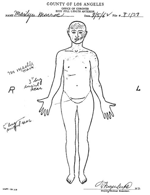 JEZT - Rainer Sauer - 17 Tage Europa - Marilyn Monroe Autopsie - Koerpermerkmale