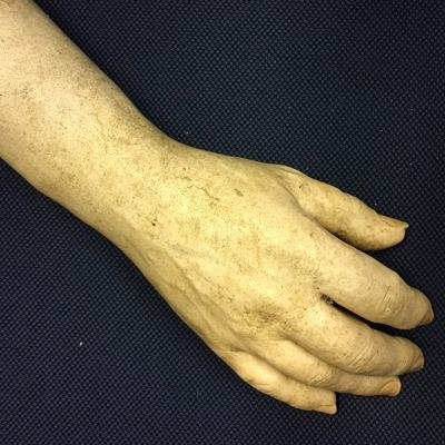 JEZT - Wer kennt diese Hand - Teil einer in der Saale gefundenen Unterarmprothese - Foto © LPI Jena