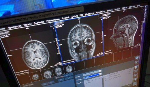 JEZT - MRT-Aufnahme eines menschlichen Gehirns. - Foto © FSU Kasper